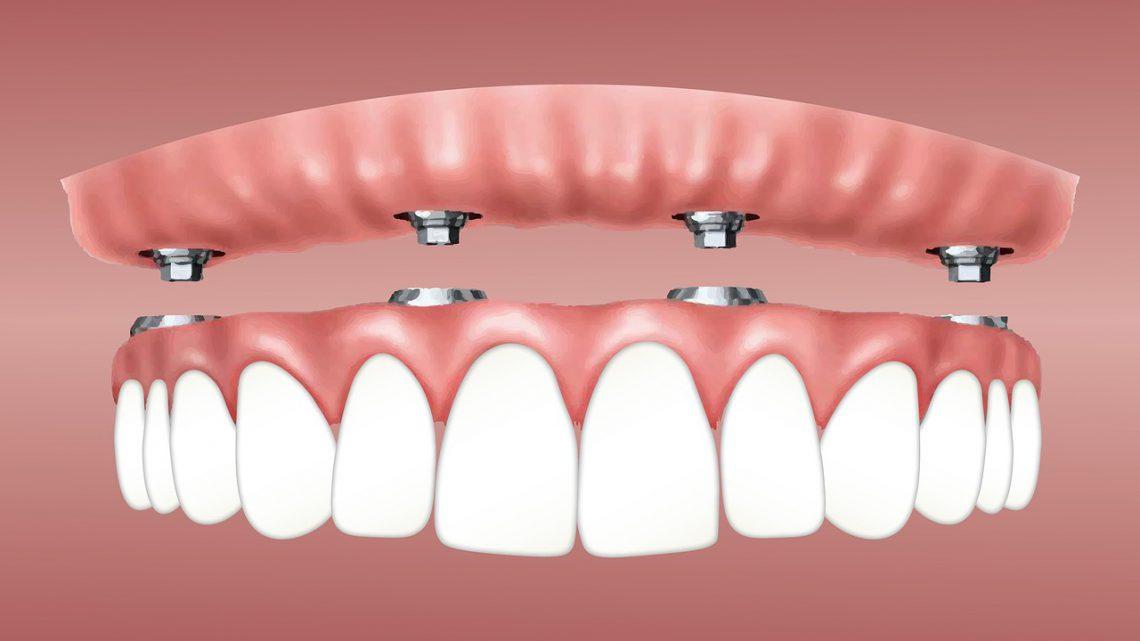 Nie warto unikać wizyt u dentysty