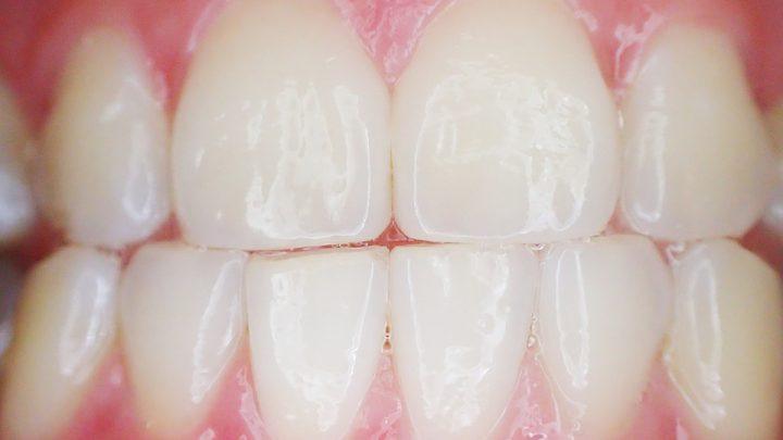 Próchnica u dzieci – ważna szybka wizyta u stomatologa